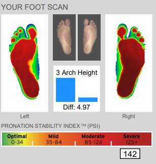 foot scan up-close