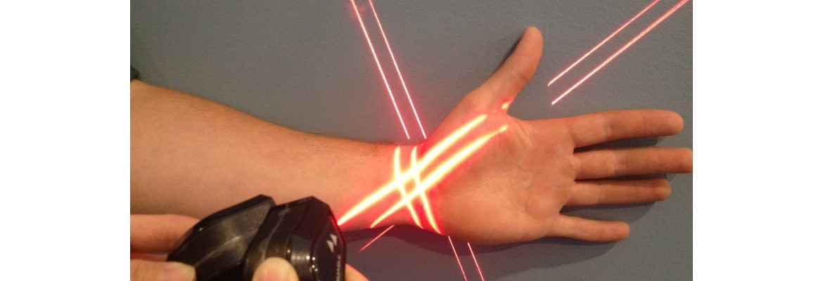Erchonia Low Level Laser Therapy Wrist