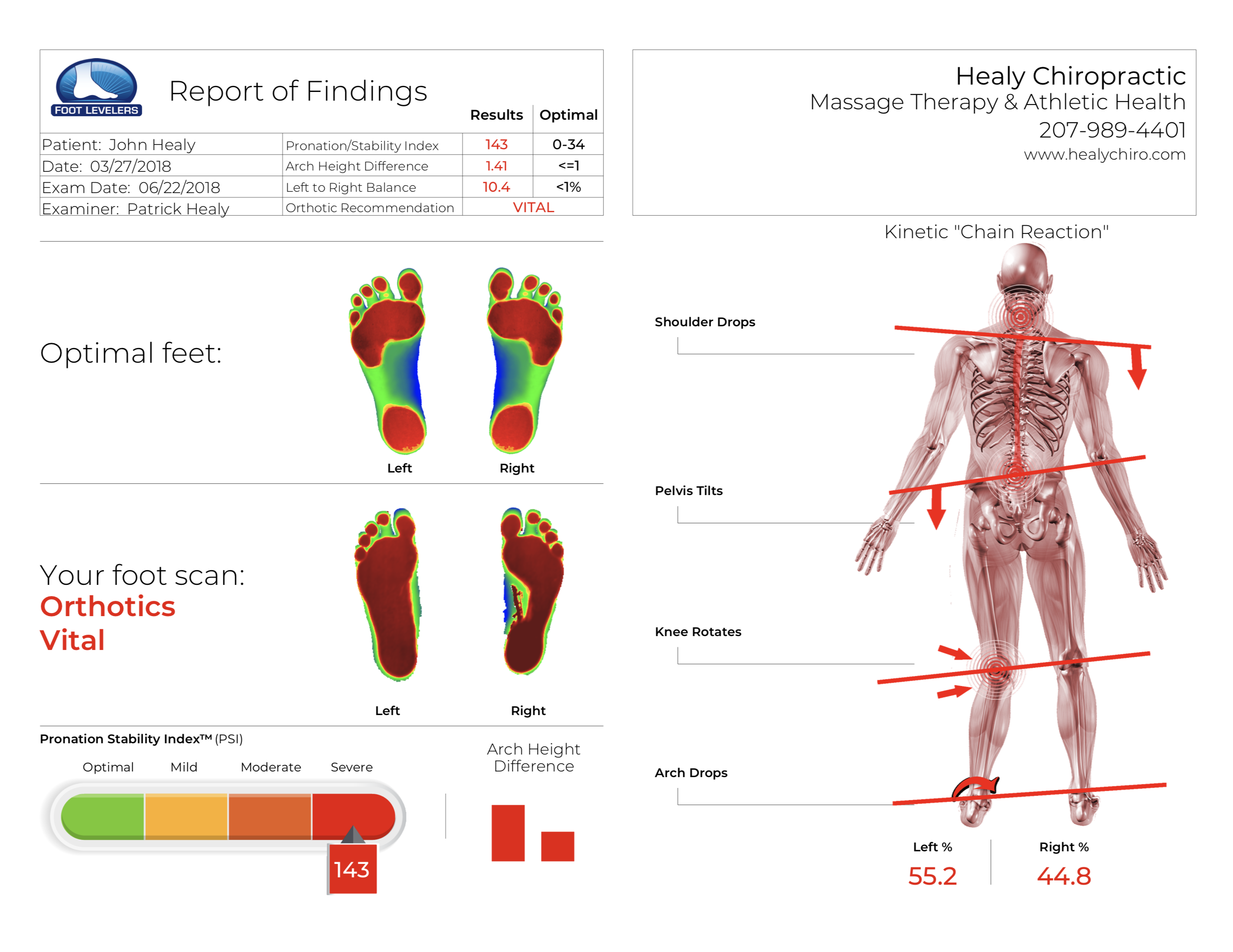 Uneven foot scan flat feet